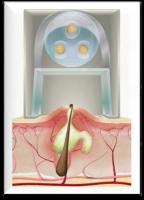 Acleara Mechanism, How Acne Treatments Works