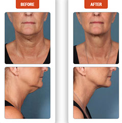 Before & After kybella