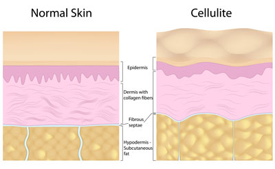 Diminishing the appearance of cellulite