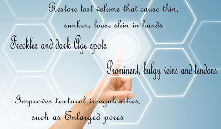 Hand Rejuvenation Treatment Options