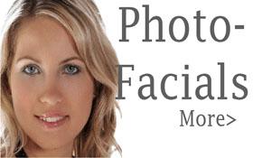 Photofacials