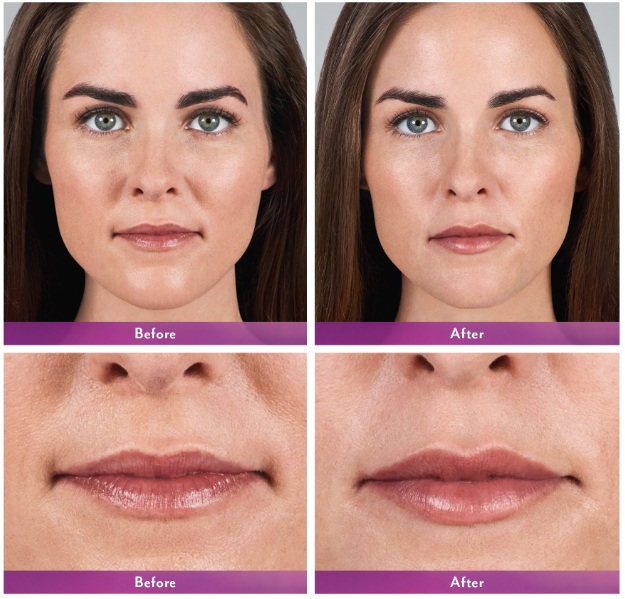 Volbella XC before and after lips