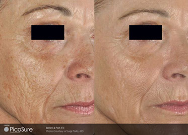 Picosure wrinkle Proven Results, laser treatments, Pittsburgh, Med, Medi, medical, spa, skin rejuvenation, Facial,rejuvenation, skin, acne, acne scars, aging, wrinkles reduction, pore size,