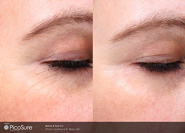 Picosure wrinkle Proven Results