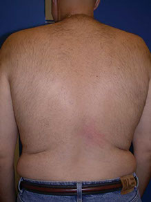 Laser Hair Removal Back After, hair removal videos, hair removal pictures, photos, laser hair removal testimonials, Gold Standard, Before, after, laser treatment, FDA approved, Pittsburgh, underarms, back, chest, legs, neck, face, arms, Brazilian, nose hair, toe hair, Youtube video playlist, Cosmetic injections pittsburgh, BOTOX® Cosmetic pittsburgh, wrinkles pittsburgh, laser pittsburgh, spider veins pittsburgh, EVLT, Endovenous laser treatments, varicose veins, varicose vein treatments, endo venous laser, acne pittsburgh, acne light pittsburgh, levulan pittsburgh, erbium laser pittsburgh, Dermal Remodeling Laser pittsburgh, restylane, laser peel, skin resurfacing, rejuvenation, Collegen, Plastic, Cosmetic, Surgeon, zeno, hairmax, lasercomb, laser comb, hair loss, hair restoration, Prevage, prevage pittsburgh, prevage antioxidant, idebenone, idebenone antioxidant, allergan cream, allergan antioxidantlaser, laser skin care, laser resurfacing, laser vein treatments, Pittsburgh, Pennsylvania, Pgh, Plastic, Surgery, PA, WV, NY, OH