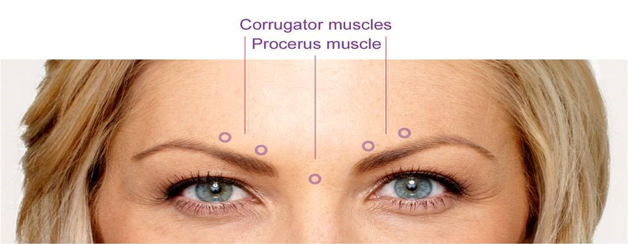 Corrugator muscles diagram, Botox treatment important information, BOTOX Cosmetic, BOTOX®, botox Pittsburgh, botox treatment, botox procedures, botox injection, Cosmetic injections, wrinkles, eye, brow, brows, injections, botulinum, Anti perspire, sweating, chronic migranes, relax muscles, furrows, crow's feet, voluptuous lips, thinning lips, botox cost, botox prices, botox photo, botox pictures, Cosmetic, Surgeon, facial anatomy, Pgh, PA, facials, avoid Surgery, facelift, Skin Center, skin care, botox alternative, better than botox, rejuvenate, soften frown lines, Collagen, hyaluronic, Juvederm Voluma XC, restylane, juvaderm, Juvderm XC, smooth wrinkles away, Perlane, lip implants, dysport, Dermapen, WV, OH, botox spa,