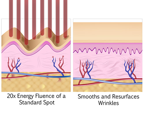 Deep wrinkle reduction before and after picosure