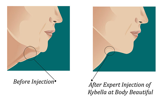 Kybella double chin, facelift