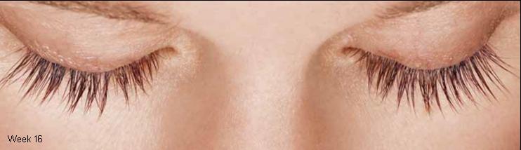 eyelashes with latisse week 16