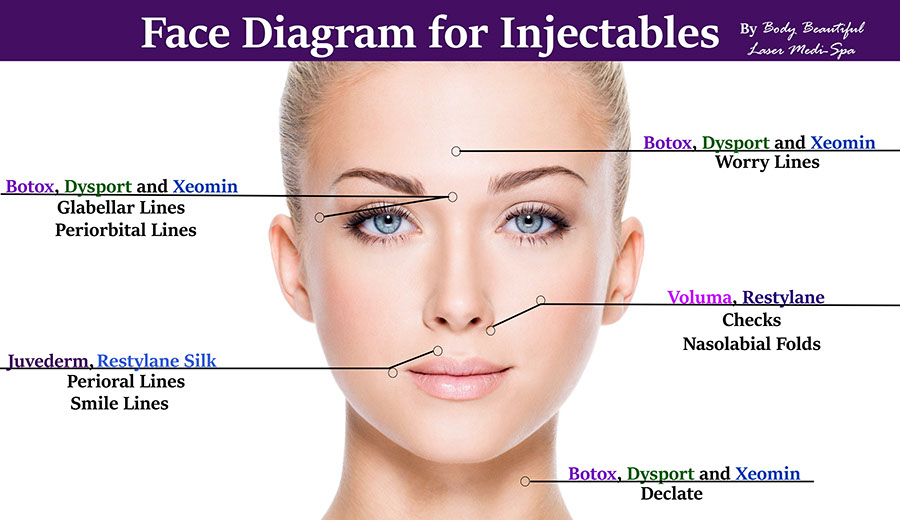 Face diagram with products botox juvederm xeomin dysport voluma restylane silk and areas