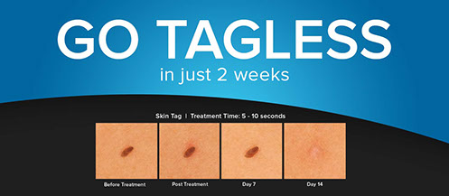 Skin tag Diagram, cryoclear, cryo clear, skin tags, remove, age spots, sun spots, skin concerns, hyper pigmentation, moles, warts, cholesterol deposits, safe, keratosis, how cryoclear works, dark spots, cryotherapy, pittsburgh, body beautiful, laser medi spa, before and afters, testimonials, cryoclear