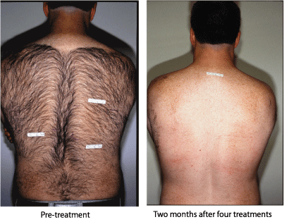 Before and after back hair laser hair removal