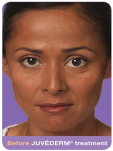Juvederm before and after, Commonly Treated Areas, Juvedurm, Cosmetic Benefits of Injectable Gel Filler, Collagen, stressed appearance, method, reduce signs of aging, wrinkles, benefits of injectable gels, smoother, more youthful-looking skin, facial lines, Fillers treat, Fillers have, appearance of prominent, deep Wrinkle Lines , Facial Expression Lines, Facial wrinkles , Fine lines, Lip Augmentation, Juvederm, Perlane, Restylane, Lip line definition, Plumping Thin Lips, Improving 'lipstick lines, vertical lines , upper lip, lipstick, Frown lines, nose, nostrils, Brows , Glabella, procerus, corrugator muscles, 1's, 11's, 111's, Temples, Smile Lines, Laugh lines, Nasolabial folds, Sculptra, Prejowl Sulcus, Cheek hollowing,