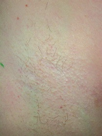 underarm hair removal 3 sessions