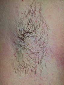 underarm hair removal before