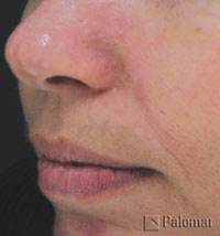 Active Acne Blemishes