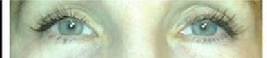 After eyelashes