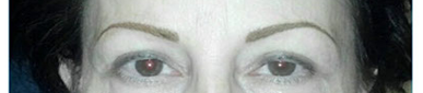 After permanent makeup eyebrows