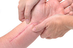 Arm scar skin condition candidates skin resurfacing