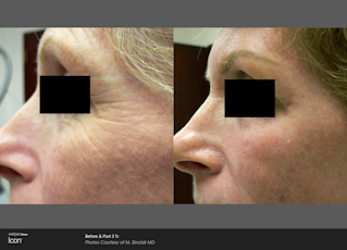 BA Icon face around eye Pre and Post treatment