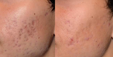 Before and after Acne skin rejuvenation