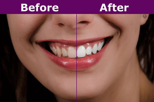 Teeth whitening Before and after, teeth whitening service, Pittsburgh teeth whitening service, teeth whitening treatment Pittsburgh, teeth whitening procedure