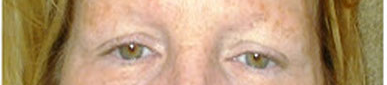 Before permanent makeup eyebrows