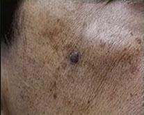 Skin Tags important information, Fibromas, Telangiectasia, small spider vein, Molluscum Contagiosum, Pyogenic Granuloma, Melanocytic