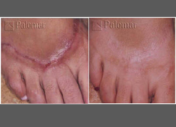 Foot scars before and after treatment