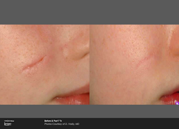 Icon D Vasily surgical scar cheek pre and post