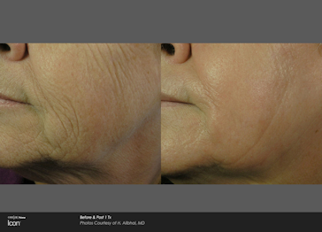 Icon wrinkle pre and post treatment