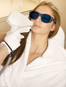 Laser treatment process sun and age spot, Intense Pulsed Light therapy IPL Photofacial and Fractional, treatment