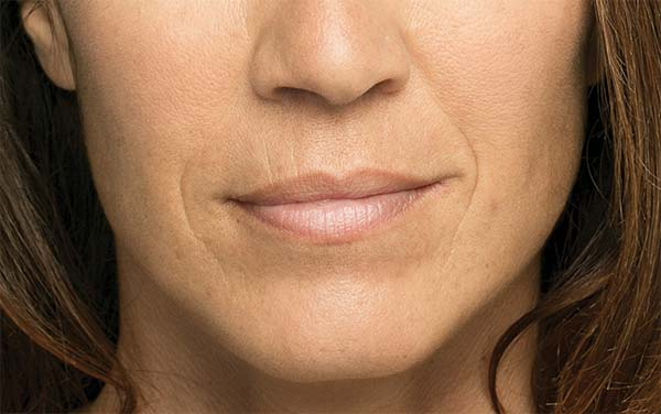 Before, Xeomin,Belotero,Radiesse,cosmetic injections,anti-aging injectable,treatments,smoothing,preventing wrinkles,surgical intervention,wrinkle treatment,benefits,Free Consultation,Merz Cosmetic,facial wrinkles,men,women,smooth,youthful appearance,frown lines,self-confidence,elite Injectors,Galderma,Merz,Partner Privilege,Program,Pennsylvania,exclusive savings,Savings Program,V.I.P Program,