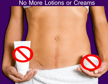 No More Lotions or creams remove scar and stretch marks with laser