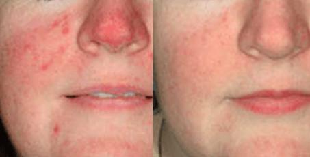 Photofacials before and after (1).jpg