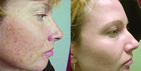 Photofacials rejuvation before and after.jpg