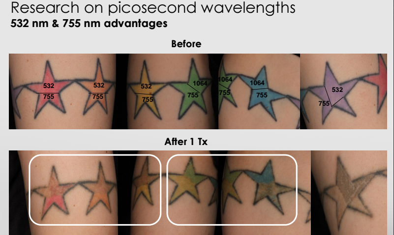 Picosure wavelengths advantages, before and after tattoo removal 532 NM and 755 nm Diagram, research
