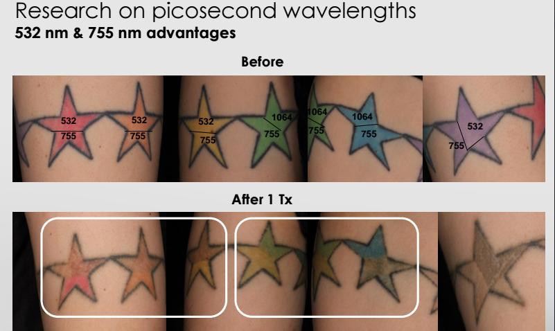 Picosure wavelengths advantages