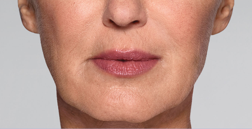 Refyne after picture 1, Restylane treatments result