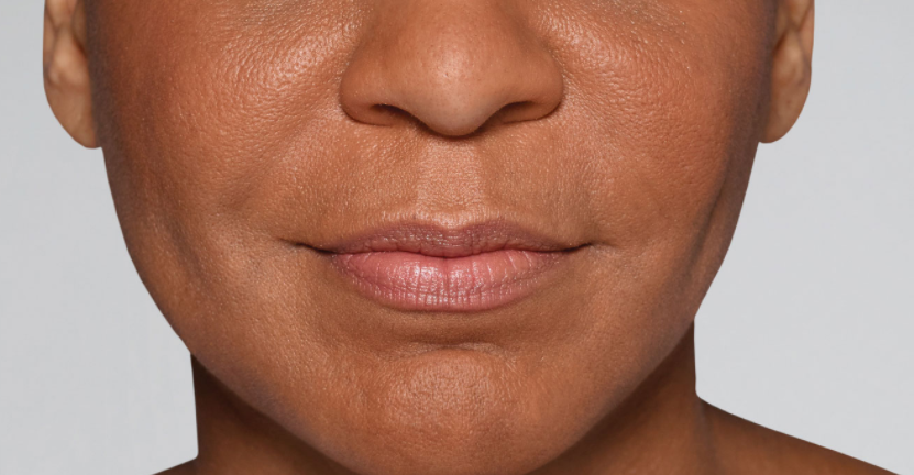 Refyne after picture, Restylane treatments result