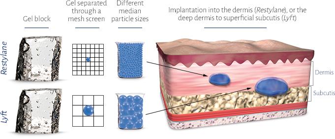 Refyne and Defyne Skin diagram, ,Restylane REFYNE, Restylane DEFYNE, Restylane after, Restylane Dermal Filler, injecables, fix wrinkles and fine lines