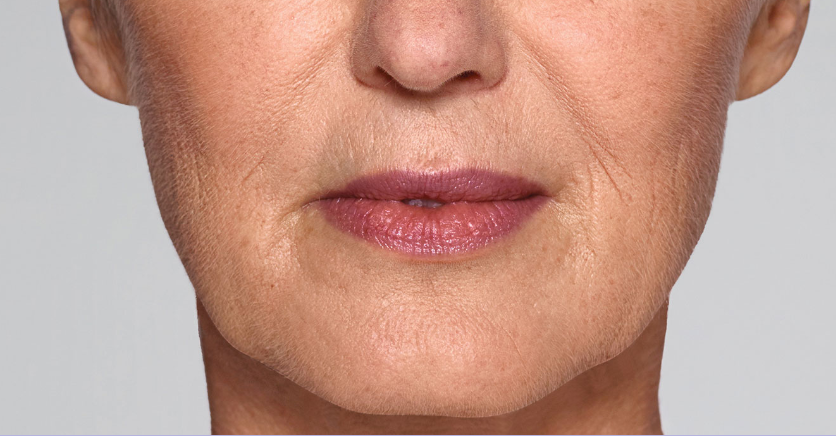 Refyne before picture 1, Restylane treatments result