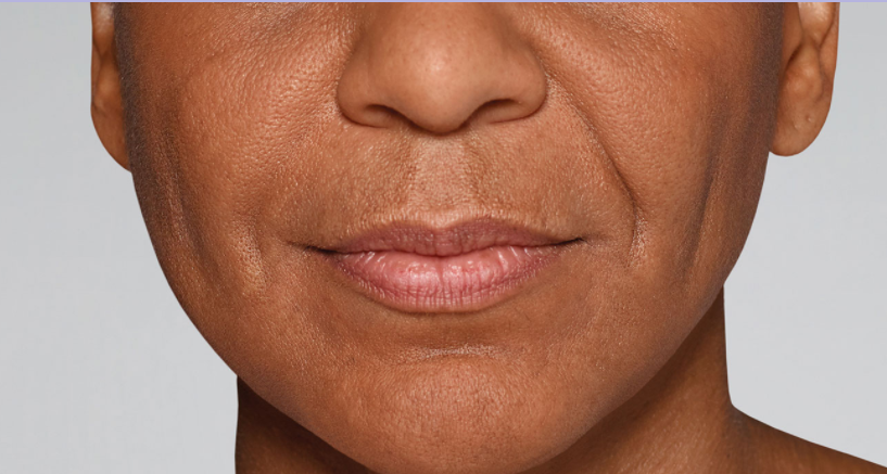Refyne before picture, Restylane treatments result