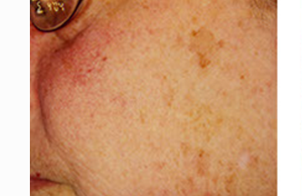 Rosacea and Cosmetic Vascular