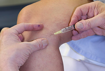 Sclerotherapy medical grade solutions