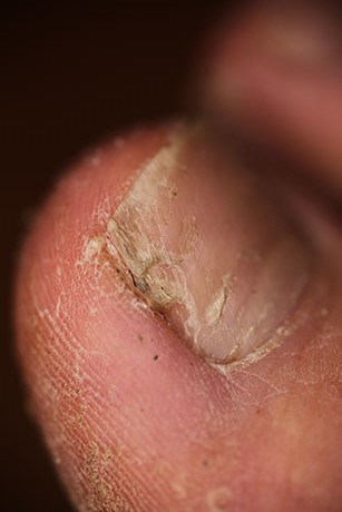 toenail fungus on toe