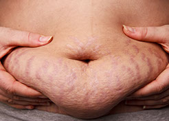 Tummy with stretch marks Stretch Mark skin condition candidates skin resurfacing