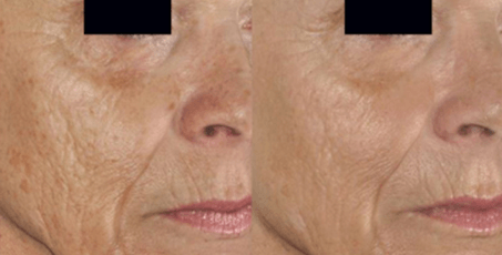 Sublative Skin Rejuvenation before and after (1)