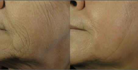 Sublative Skin Rejuvenation before and after (2)