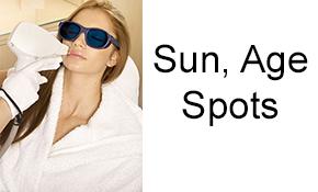 Sun, Age Spots